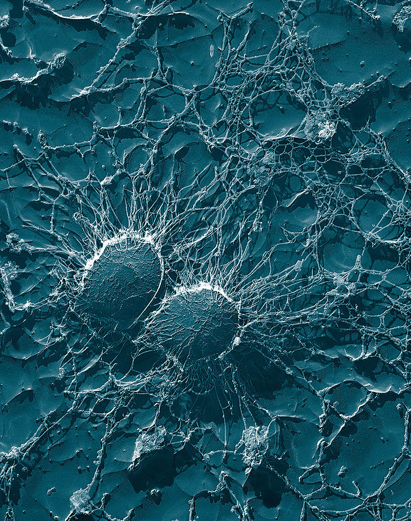 Staphylococcus aureus